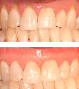 ignoring periodontal disease