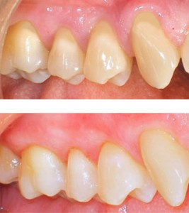 Periodontal Disease Multiple areas of receding gums exposing root surfaces