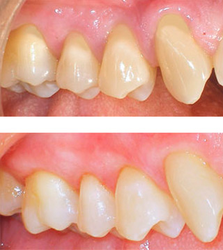 Multiple areas of receding gums exposing root surfaces