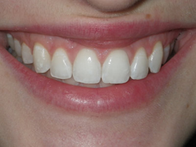 Crown Lengthening (after) cosmetic use dentistry