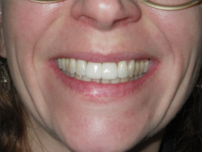 Dental Implant (after)