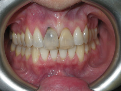Dental Implant (before)