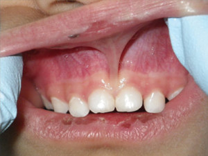 Before Frenectomy Procedure