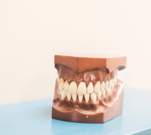 model of teeth